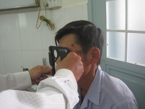 Một số phương pháp sơ cứu cần thiết khi bị bỏng mắt